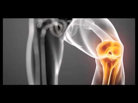Vdm tratament articular Preț - Aparate pentru tratamentul artrozei vdm