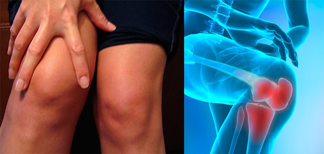 tratamentul artrozei genunchiului cu sare)