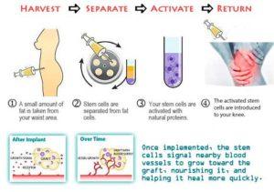 tratamentul cu celule stem a coxartrozei șoldului