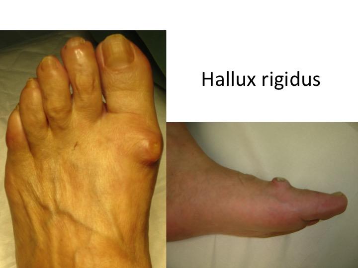 tratamentul deformării articulare pe degetul mare