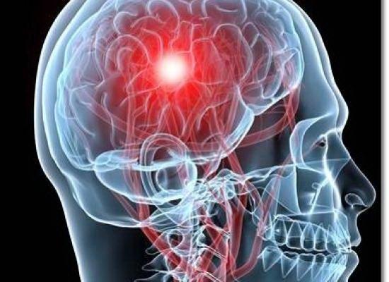 tratamentul durerilor articulare după un accident vascular cerebral