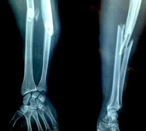 tratamentul fracturilor de cartilaj)