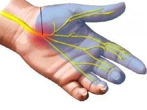 tratamentul încheieturii artrozei carpiene)