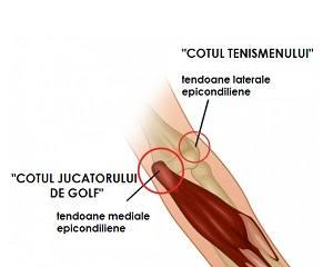 bursita seroasă a tratamentului articulației cotului