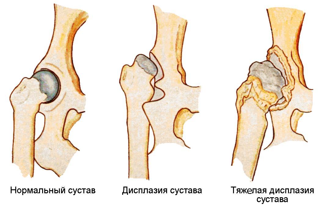 tratamentul tipului 2a al articulației șoldului