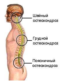 unguent pentru osteochondroza cervicală și toracică Cumpărare de cultură în Kaluga