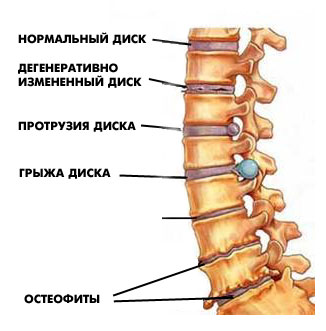 unguente pentru osteochondroza coloanei vertebrale)