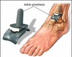 durere intermitentă în articulații și picioare tratament de entorsă cruciată