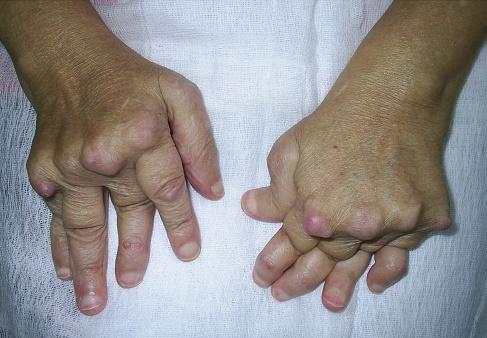 modificari articulare poliartrita reumatoida)