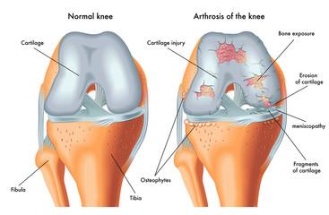 boala de genunchi depășește articulația
