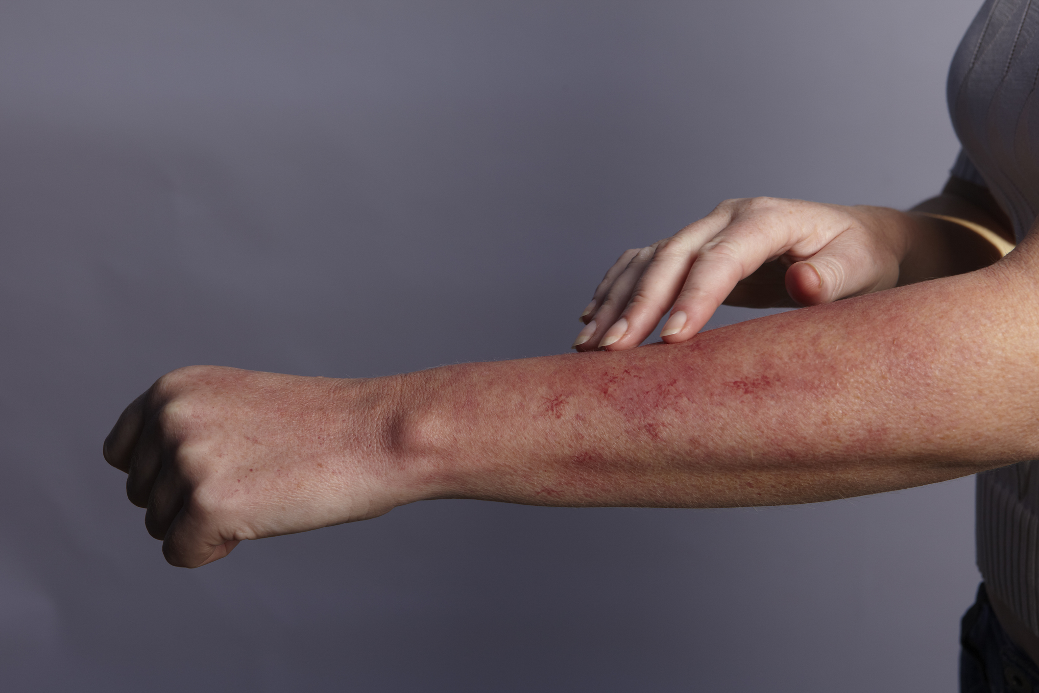 infecție cu erupții cutanate dureri articulare)