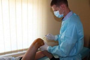 Utilizarea plasmei în tratamentul articulațiilor.