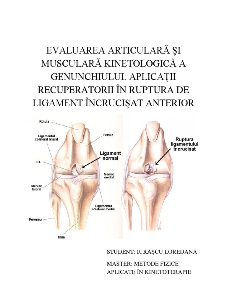 ligamentul lateral intern al inflamației articulației genunchiului)