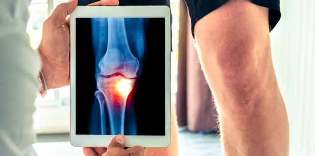 modificări degenerative în tratamentul articulației genunchiului