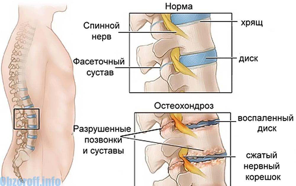 mijloace pentru osteochondroza)