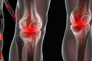 inflamație simultană a mai multor articulații)