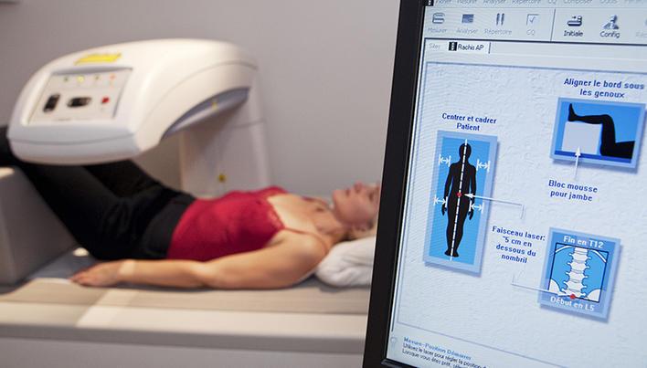 Exercitii eficiente pentru osteoporoza   studioharry.ro