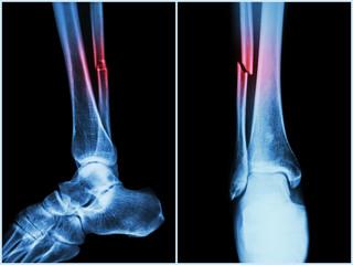 Semne radiologice ale bolilor osoase și articulare, Account Options