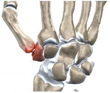 degetul dureros și umflat în articulație)
