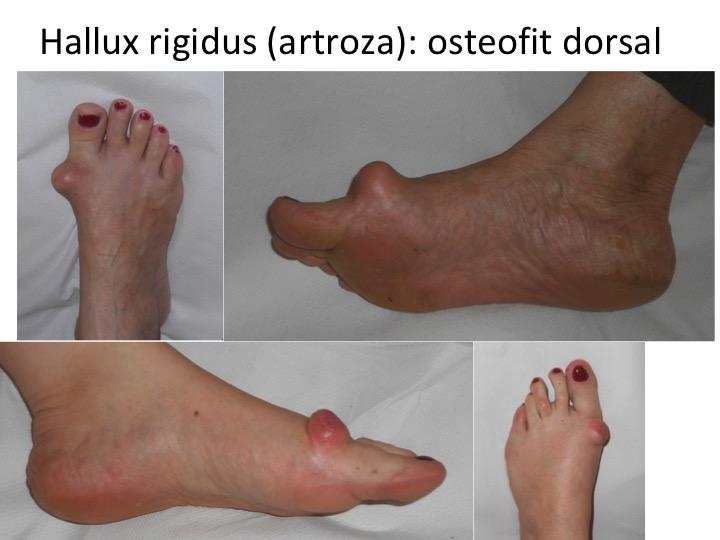 ce medicamente pentru a trata artroza piciorului