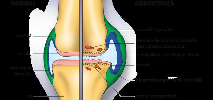 tratamentul ligamentelor sfâșiate în articulația genunchiului)