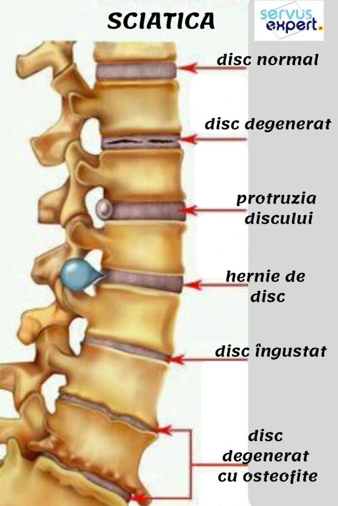 medicament pentru durerea articulațiilor și a coloanei vertebrale