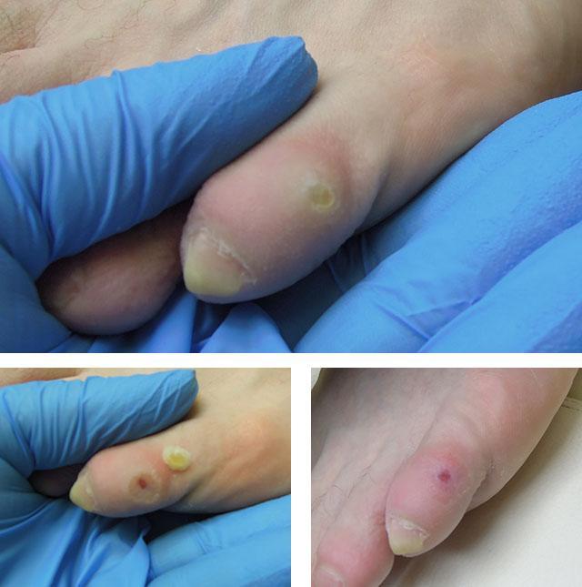 de ce durează articulația de pe un deget)
