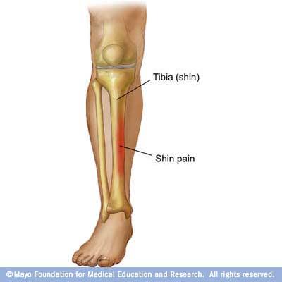 durere în articulația piciorului după alergare