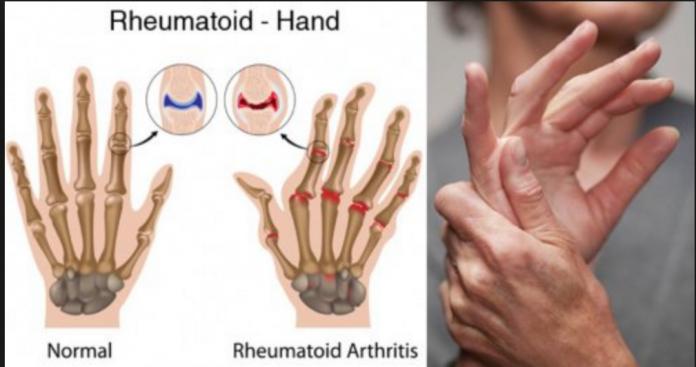 articulațiile rănesc după fracturarea mâinii vitriol articular