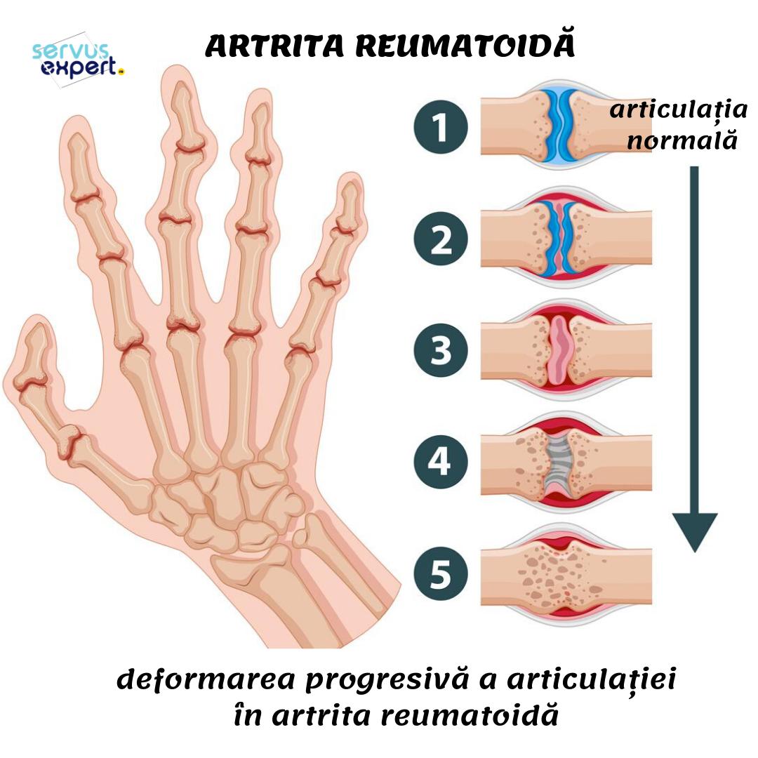durere în mâna unde articulațiile sunt)