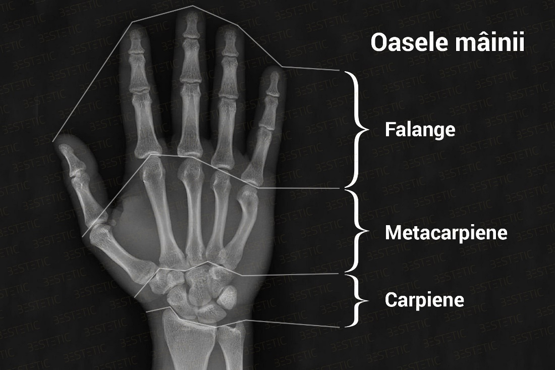 tratament articular după fracturi)