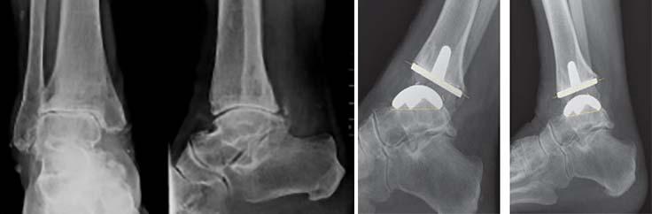 metode de tratament pentru artroza brahială)