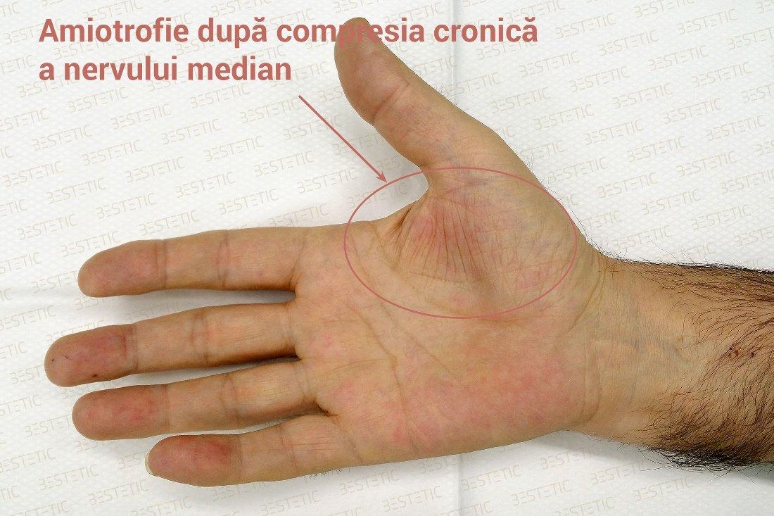 tratament naturist pentru amortirea mainilor
