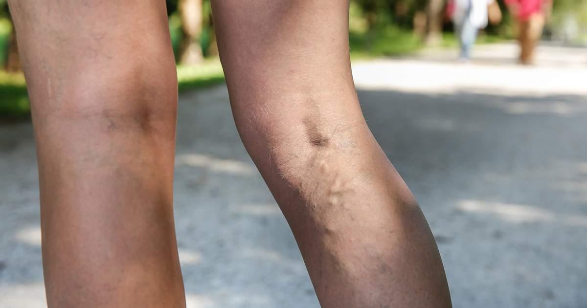 leziuni la genunchi și la nivelul picioarelor inferioare)