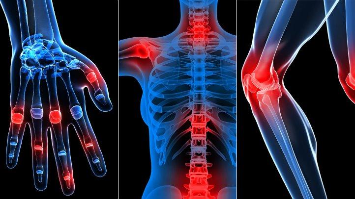 Artroza tratamentului de gimnastică a coloanei cervicale