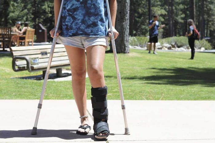 tratamentul articulațiilor false ale claviculei blocaj în articulația genunchiului