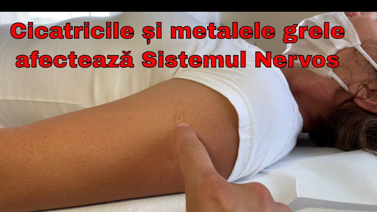 tratamentul articulațiilor cu rodon)