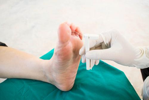 Cum să tratezi o articulație a piciorului