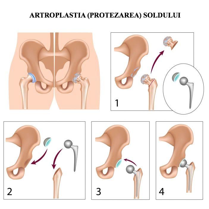 tratamentul artrozei inițiale a articulației șoldului)