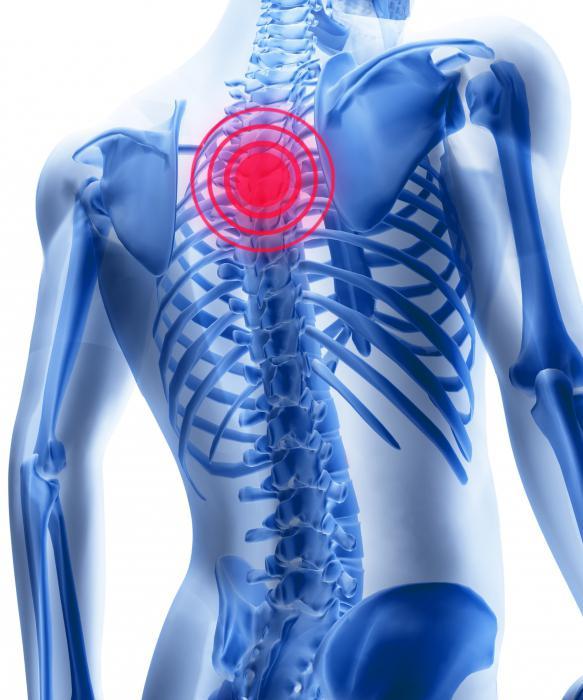 Cu osteocondroza, medicamentele sunt prescrise, Ce focuri pot fi prescrise pentru osteochondroză?