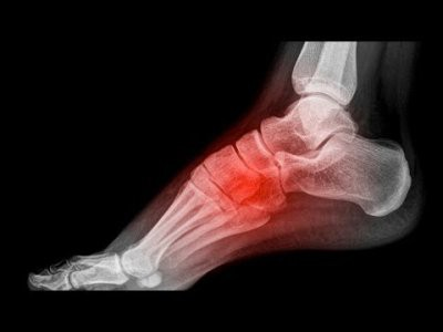 durere persistentă în articulațiile mâinilor tratamentul coxartrozei bilaterale a articulației șoldului