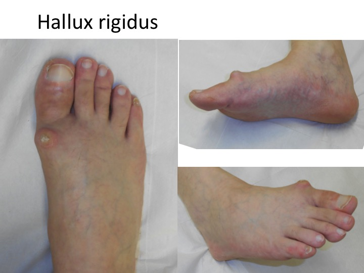 artroza picior poze)