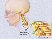 artroza intervertebrală cervicală
