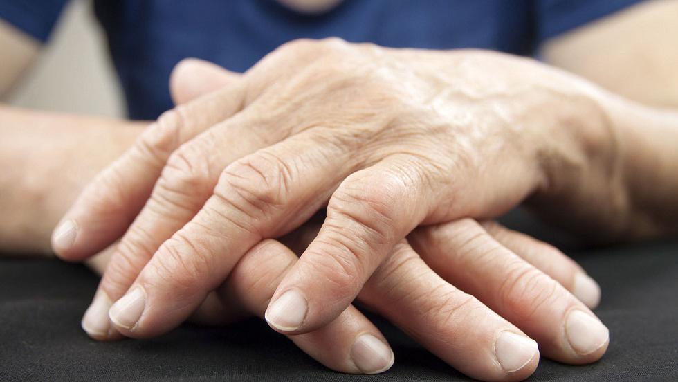poliartrita reumatoida ce este si cum se trateaza