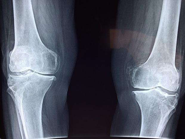 modificări degenerative în tratamentul articulației genunchiului)