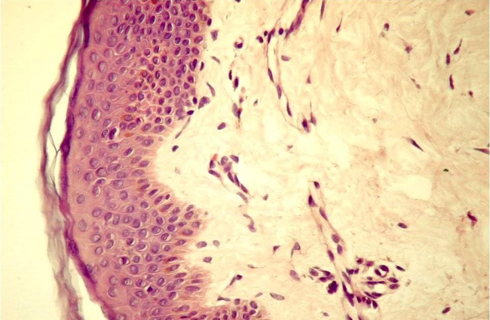 regenerarea țesutului conjunctiv fibros