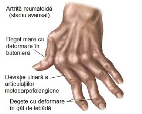 tratarea articulațiilor mici ale mâinilor