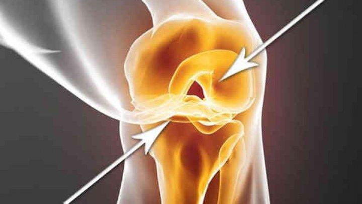 care alimente sunt bune pentru repararea cartilajelor)