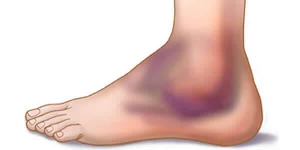 artrita seroasa a gleznei