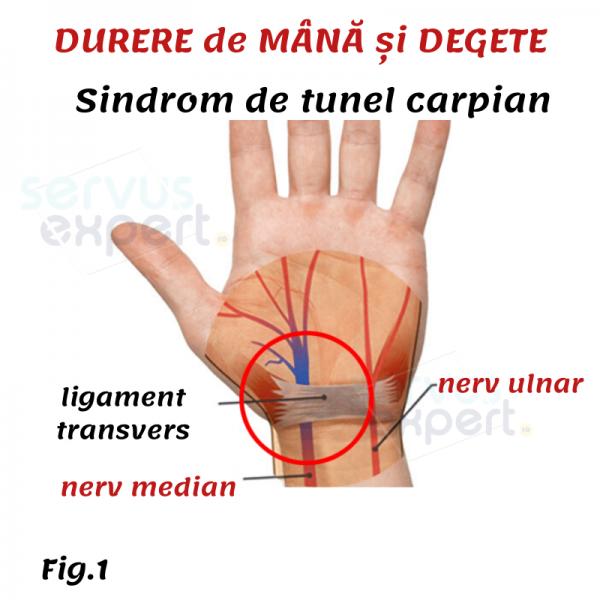 DURERE de MÂNĂ și DEGETE: sindrom de tunel carpian - Servus Expert